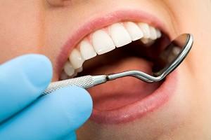 Как отбелить зубы ребенку?